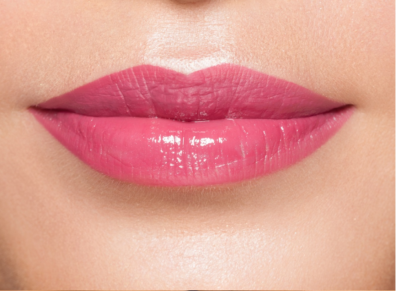 Lip Enhancement | Dr. Peter Abramson | Atlanta, GA