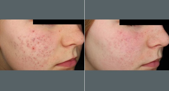 Acne Scar Treatment   Before and After Photos   Dr. Abramson   Atlanta