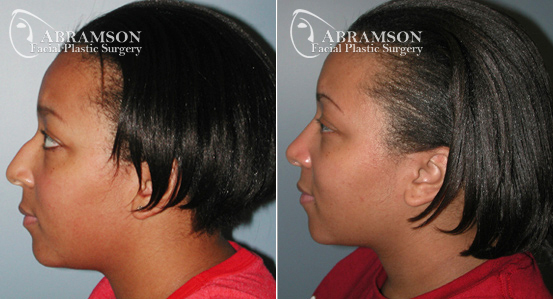 African American Rhinoplasty   Before and After Photos   Dr. Abramson   Atlanta