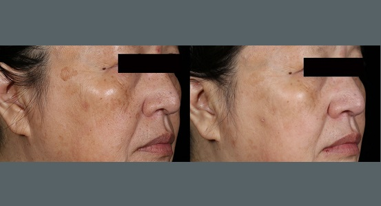 Brown Spots Treatment   Before and After Photos   Dr. Abramson   Atlanta
