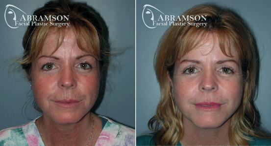 Eyelid Lift   Before and After Photos   Dr. Abramson   Atlanta