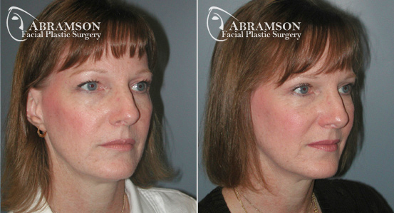 Eyelid Lift | Before and After Photos | Dr. Abramson | Atlanta
