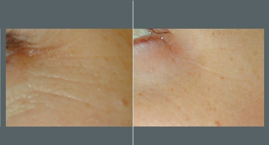 Facial Lines Treatment   Before and After Photos   Dr. Abramson   Atlanta