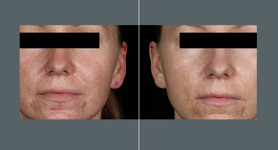 Male Rosacea Treatment   Before and After Photos   Dr. Abramson   Atlanta