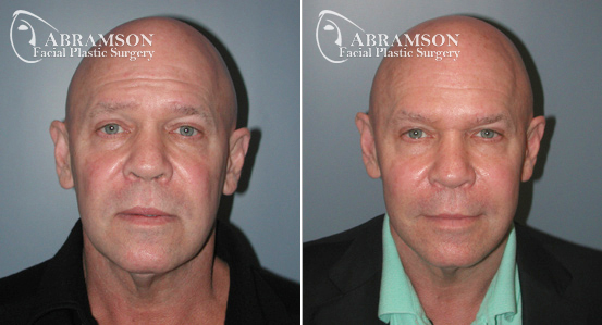Mini Face Lift | Before and After Photos | Dr. Abramson | Atlanta | 1