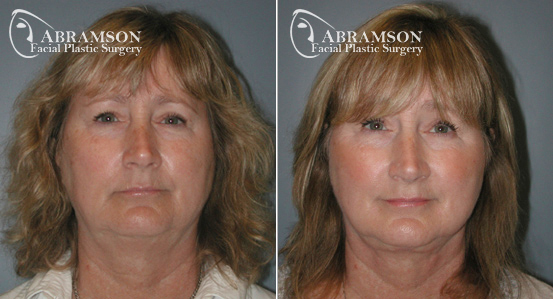 Mini Face Lift | Before and After Photos | Dr. Abramson | Atlanta | 10