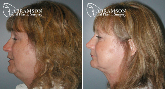 Mini Face Lift | Before and After Photos | Dr. Abramson | Atlanta | 11