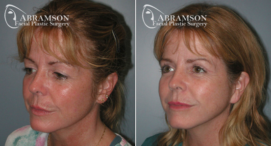 Mini Face Lift   Before and After Photos   Dr. Abramson   Atlanta   12
