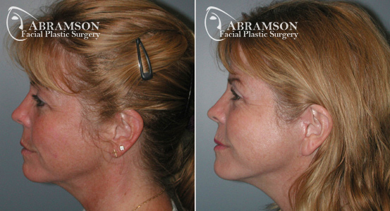 Mini Face Lift   Before and After Photos   Dr. Abramson   Atlanta   13