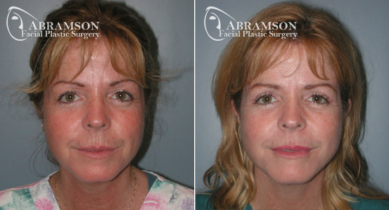 Mini Face Lift   Before and After Photos   Dr. Abramson   Atlanta   14