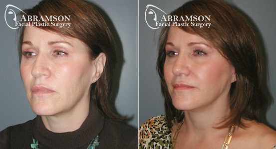 Mini Face Lift | Before and After Photos | Dr. Abramson | Atlanta | 15