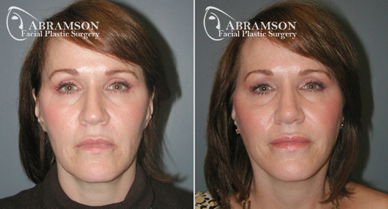 Mini Face Lift | Before and After Photos | Dr. Abramson | Atlanta | 16