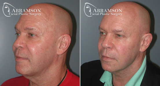 Mini Face Lift | Before and After Photos | Dr. Abramson | Atlanta | 2