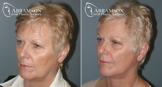 Mini Face Lift | Before and After Photos | Dr. Abramson | Atlanta | 3