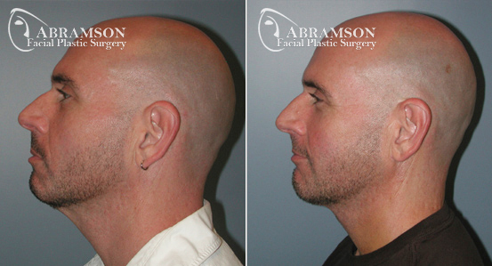 Mini Face Lift   Before and After Photos   Dr. Abramson   Atlanta   5