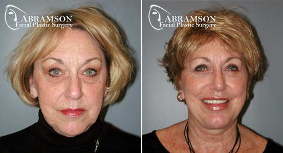 Mini Face Lift | Before and After Photos | Dr. Abramson | Atlanta | 6