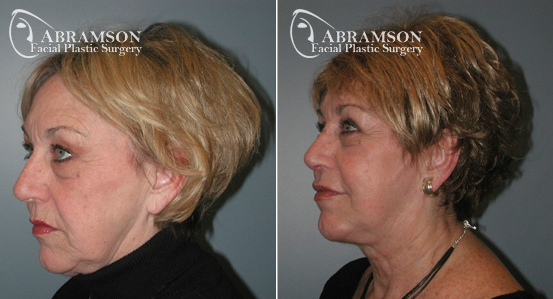 Mini Face Lift | Before and After Photos | Dr. Abramson | Atlanta | 7