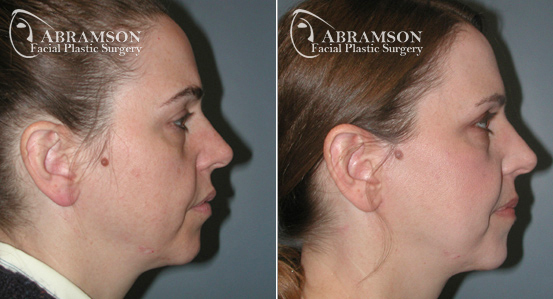 Mini Face Lift | Before and After Photos | Dr. Abramson | Atlanta | 8