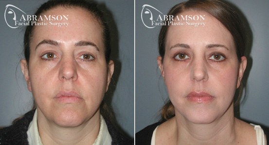 Mini Face Lift | Before and After Photos | Dr. Abramson | Atlanta | 9