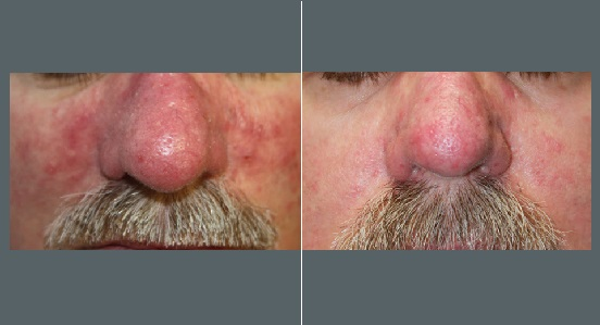 Nose Rosacea Treatment   Before and After Photos   Dr. Abramson   Atlanta