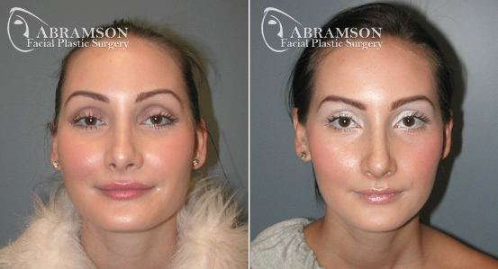 Rhinoplasty   Before and After Photos   Dr. Abramson   Atlanta