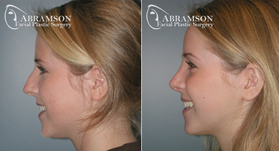 Rhinoplasty | Before and After Photos | Dr. Abramson | Atlanta