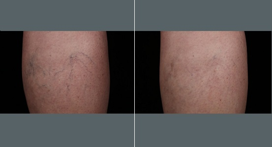 Spider Vein Treatment Legs   Before and After Photos   Dr. Abramson   Atlanta