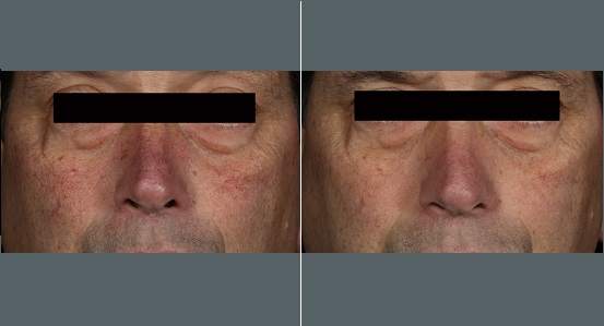 Spider Vein Treatment   Before and After Photos   Dr. Abramson   Atlanta