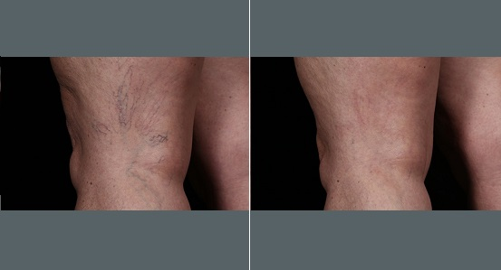 Spider Veins Leg Treatment   Before and After Photos   Dr. Abramson   Atlanta